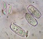 Ascospores in water and conidia (top, left)